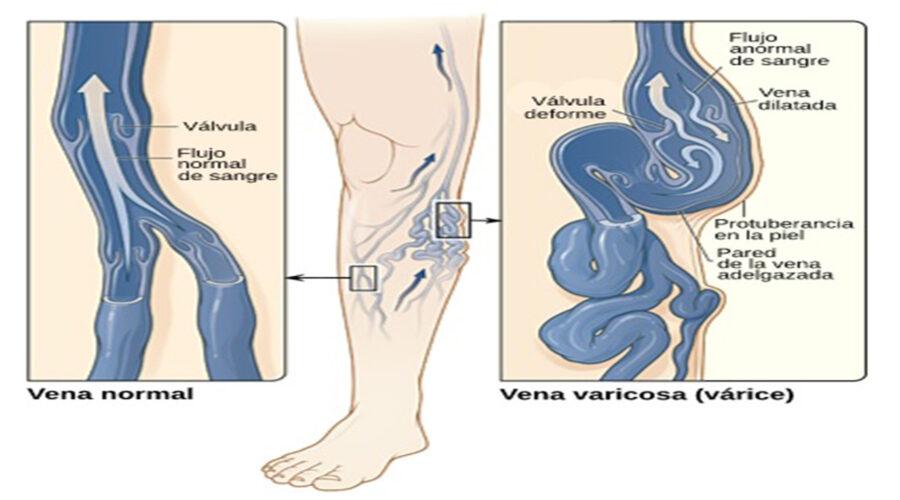 venas varicosas